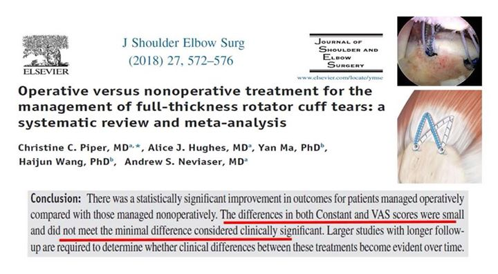 Repairs for full thickness rotator cuff tears no clinical difference between surgical & non-operative management. Patients beware of aggressive