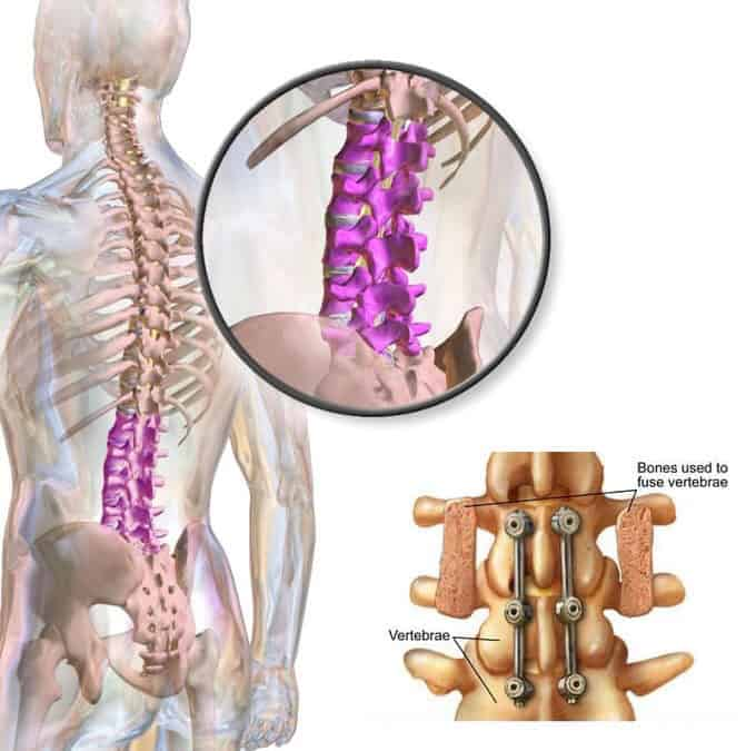 Spinal fusions the world's most expensive & over-utilized surgery.