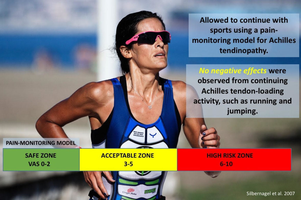 Pain with Exercise: Is it acceptable & if so how much & for how long?